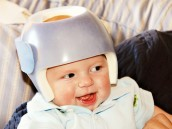 plagiocephaly helmet party
