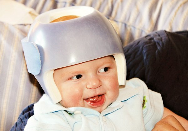 plagiocephaly helmet party